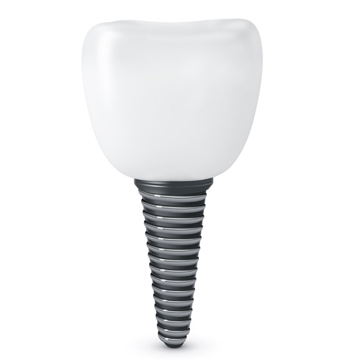 dental implants in etobicoke
